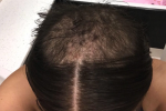 hair-in-recovery3